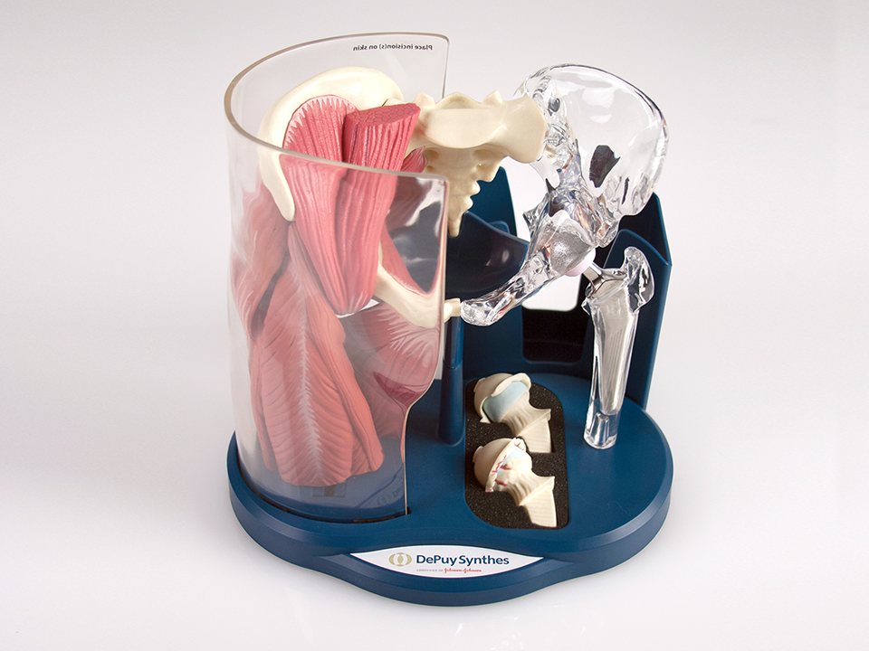 DePuy Synthes Anterior Approach Hip Model