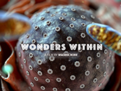 MadMicrobe: the Wonders Within