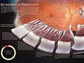 Retinopathy of Prematurity