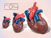 Pediatric Cardiac 3D-Printed Teaching Models