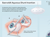 Baerveldt Aqueous Shunt Insertion