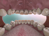 Dental Biofilm, Dysbiosis & Disease