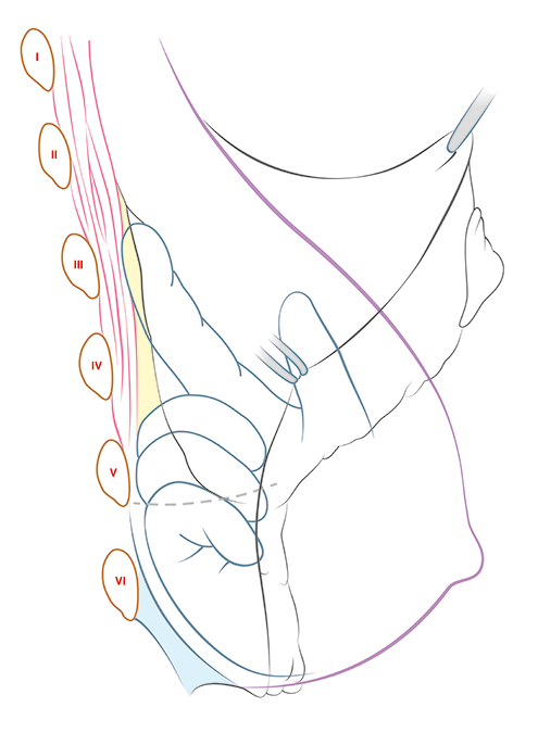 Medicall illustration showing detachment of breast from fascia in mastopexy with J scar.